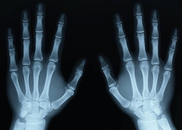 X-ray-hands